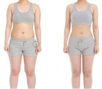 福州吸脂减肥会有副作用吗?