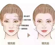 面部填充有几种方式?那些年我们一起了解过的面部填充方式